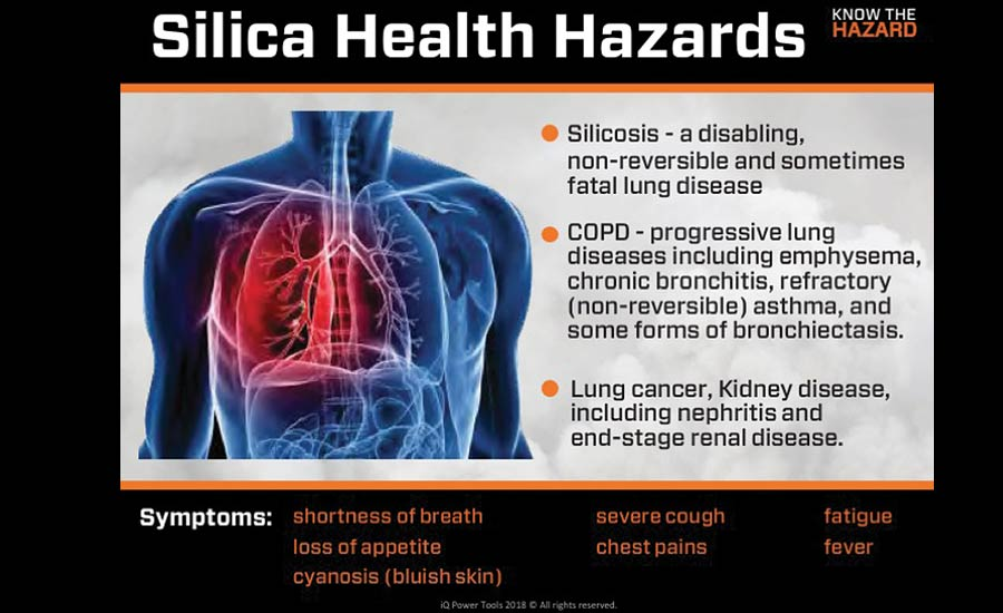 Silicosis can cause fatal diseases